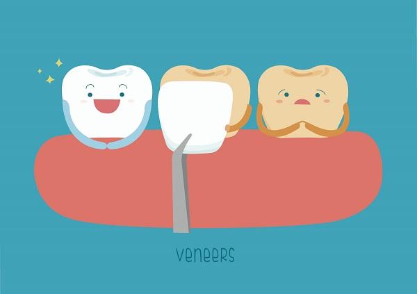 dental-veneers-melbourne