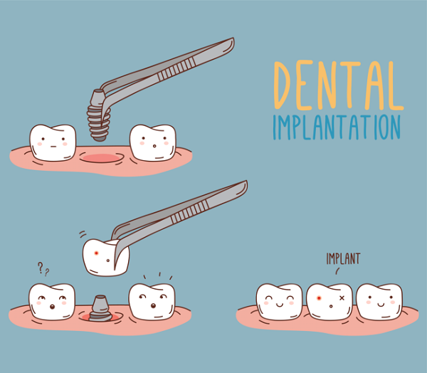 tooth-implant